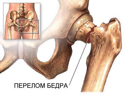 В тазобедренном суставе разливается тепло лфк при травме коленного сустава у детей
