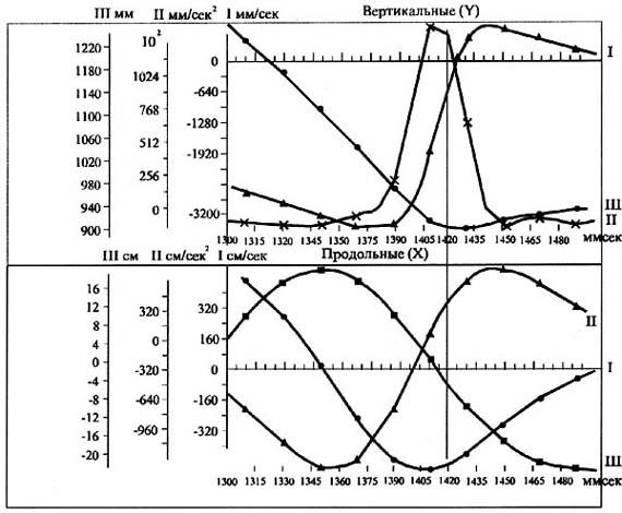 Рис. 2. Изменения величин вертикальных (верхний рис.) и продольных (нижний рис.) составляющих траектории движения ц.м. молотка (кривая и шкала Ш), скорости его движения (кривая и шкала I) и ускорения (кривая и шкала П). Вертикальной линией отмечен момент соприкосновения с ударяемой поверхностью (ориг. 1993 г.)