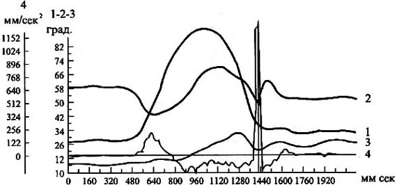 Рис. 3. Изменения углов между звеньями руки при ударе молотком: 1 - угол в локтевом суставе, 2 - в лучезапястном, 3 - в плечевом, 4 - вертикальная составляющая ускорения п.м. молотка (ориг. 1993 г.)
